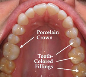 cosmetic-dentistry1